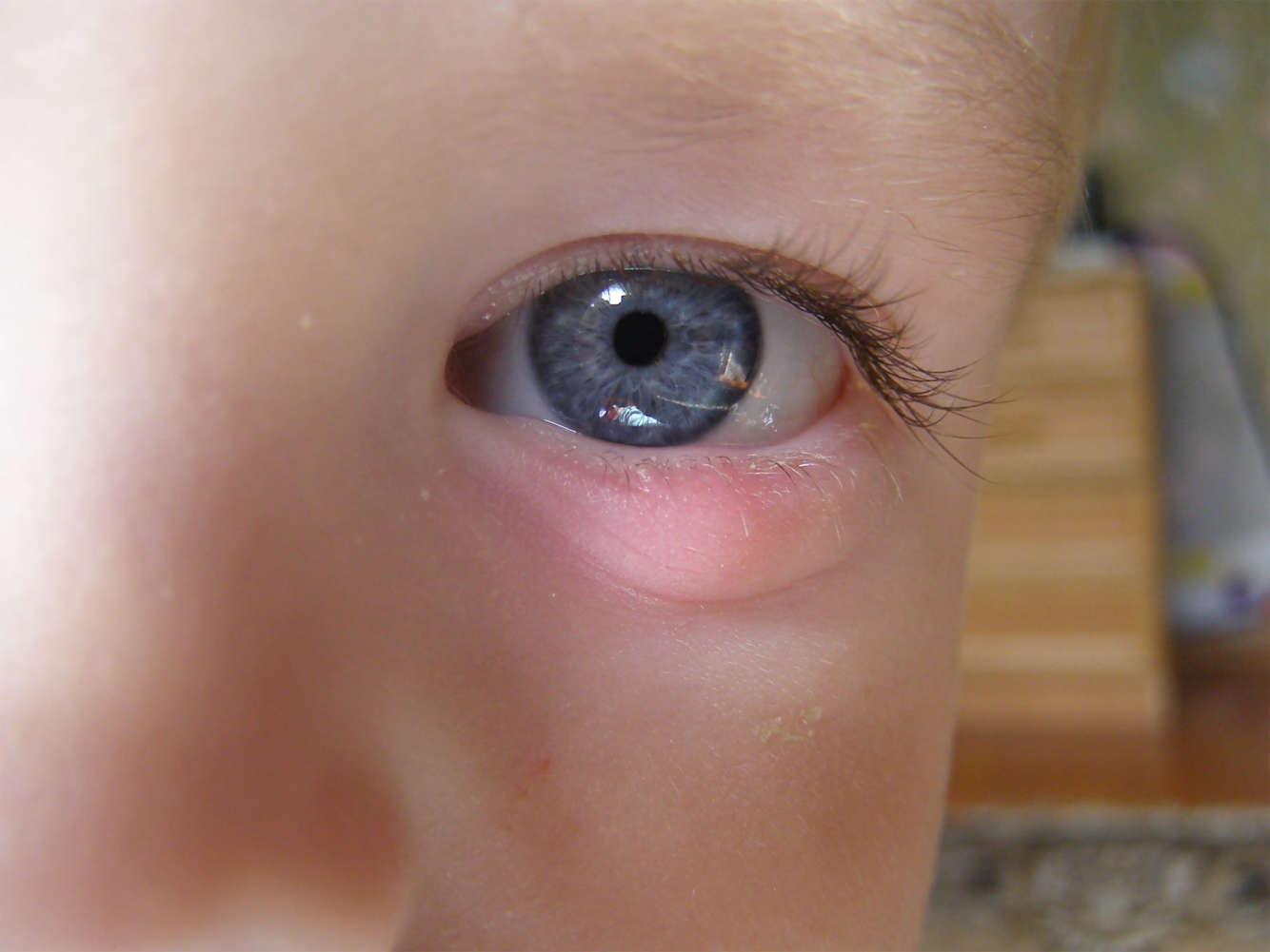 Ячмень на глазу у ребенка: причины, лечение и профилактика