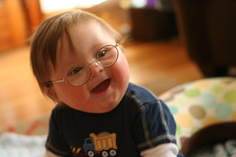 Мальчик с синдромом Дауна