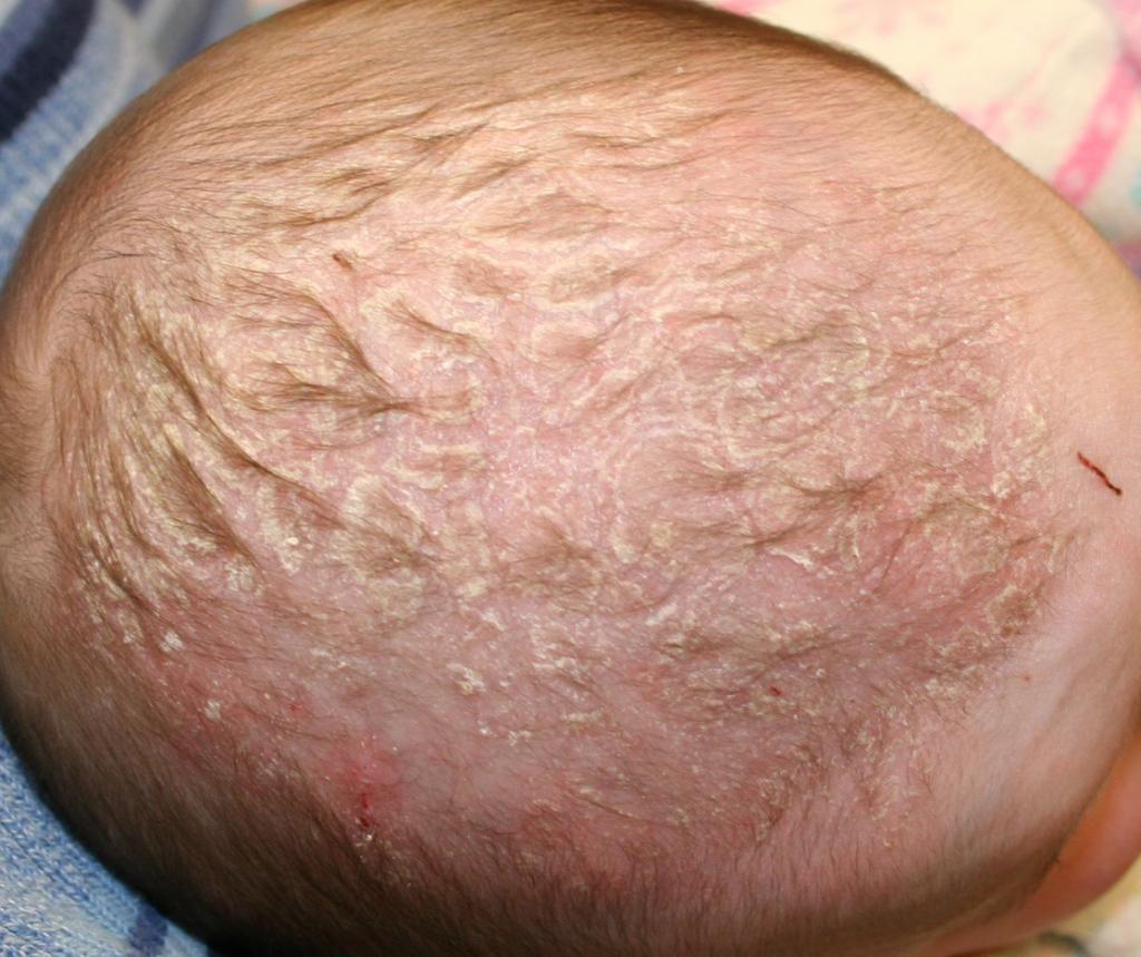 шелушение кожи головы у новорожденных