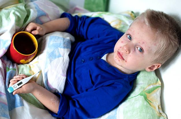 как проявляется краснуха у детей симптомы фото