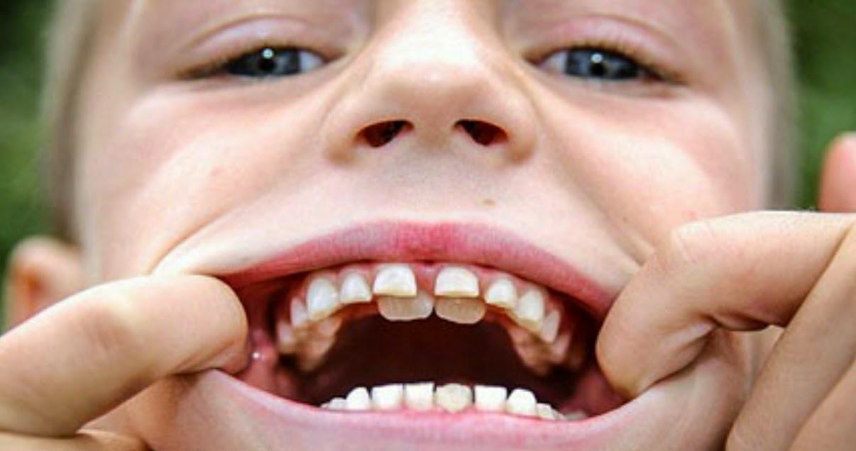 молочные зубы не выпали а новые растут