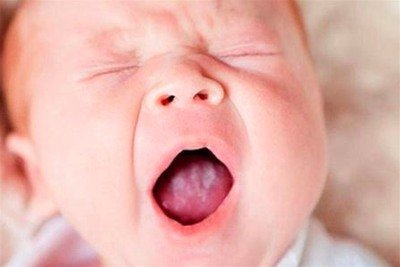у ребенка во рту молочница