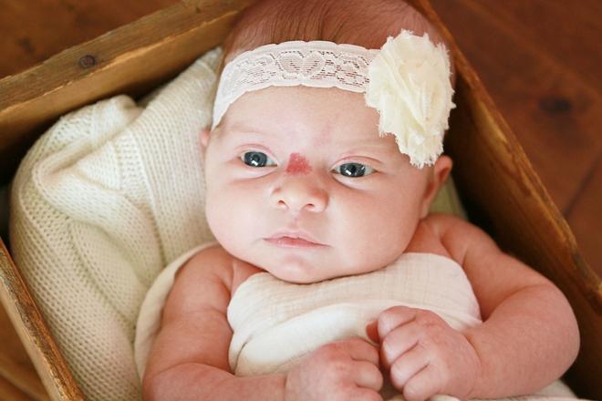 Все о гемангиоме у новорожденных