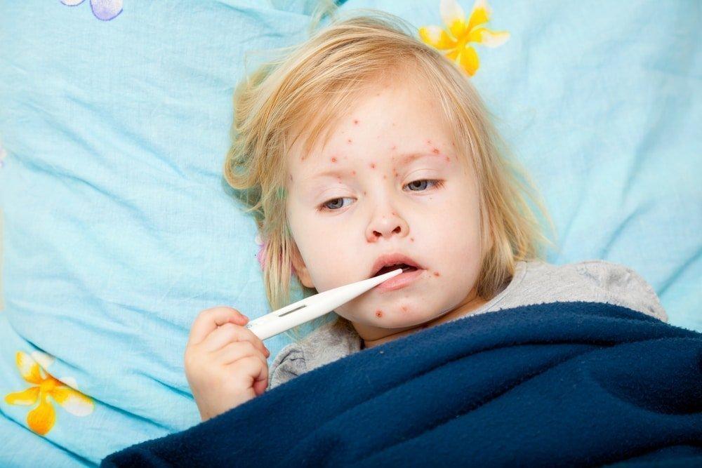 Симптомы краснухи у детей: фото, лечение и профилактика