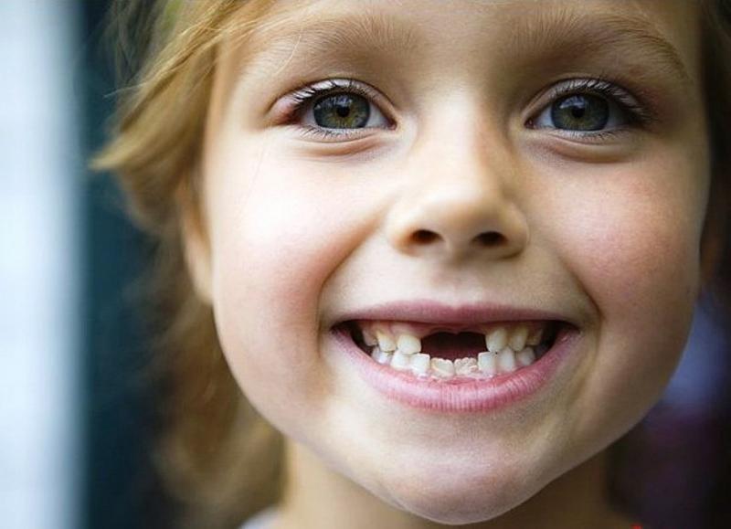 схема когда выпадают молочные зубы у детей
